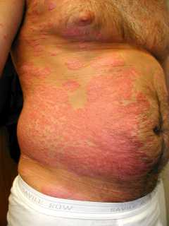 Medical surgical cosmetic for Fish allergy rash pictures